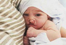 Mama objavila fotografije sina rođenog s deformiranom usnom i nepcem