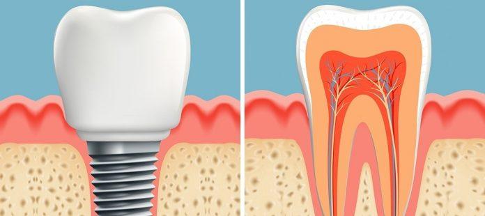 ponovni rast zuba 2 mjeseca