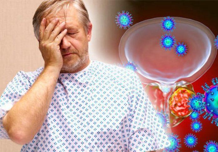 Prvi simptomi raka prostate
