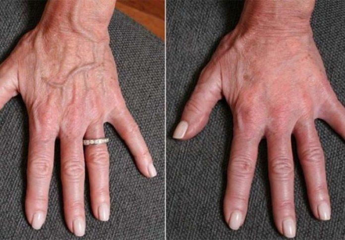 Znakovi prisutnosti raka koji se mogu pojaviti na šakama