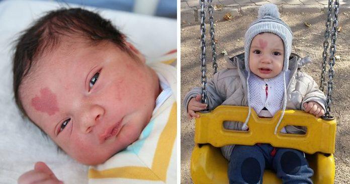 Beba je rođena s neobičnim znakom na licu