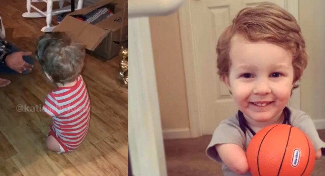 Dječak rođen bez nogu i ruku je napravio svoje prve korake