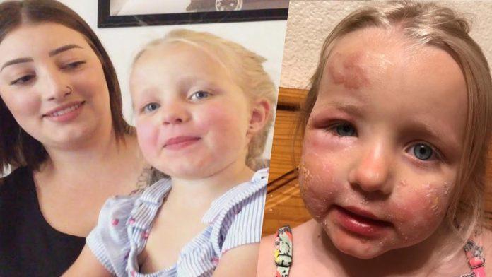 Majka upozorava na sok koji je uzrokovao jake opekline po licu njezine kćeri