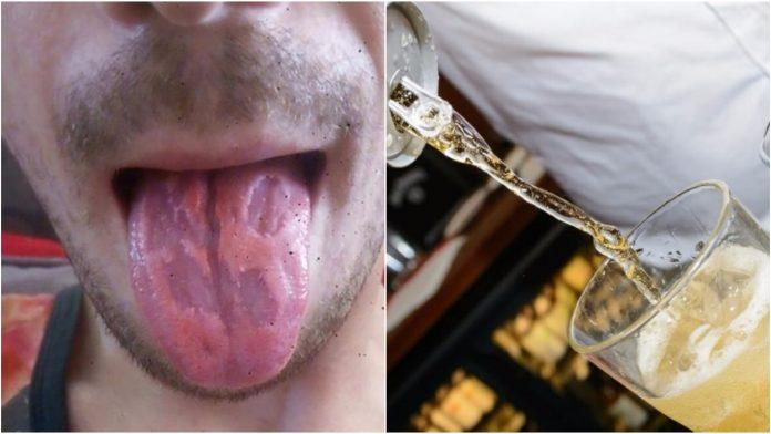 Objavio je šokantnu fotografiju svog jezika kako bi upozorio na opasno piće