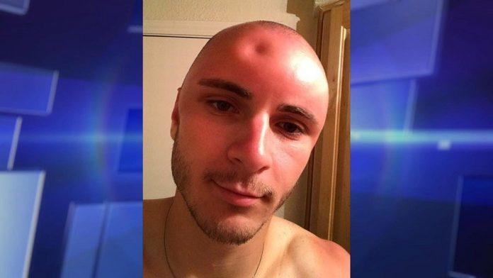Mladić je nakon izlaganja suncu uočio nešto čudno na glavi