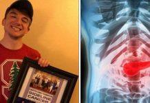 Dječak (15) izumio test za rak gušterače koji daje 100% točne rezultate