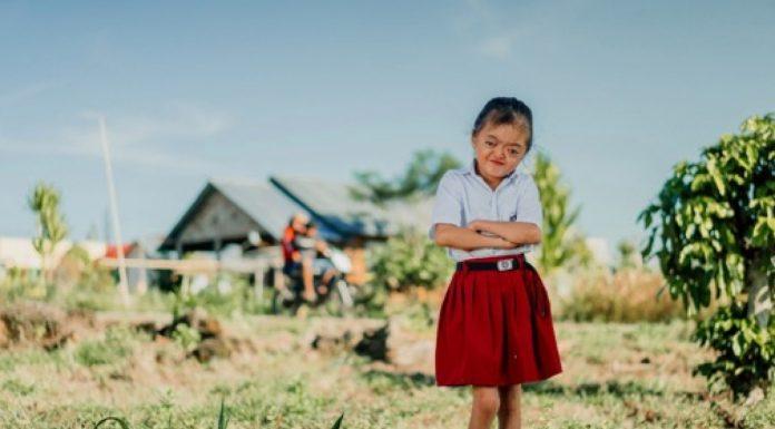 Djevojčica rođena s rijetkim stanjem ne dopušta da joj nešto ukrade radost