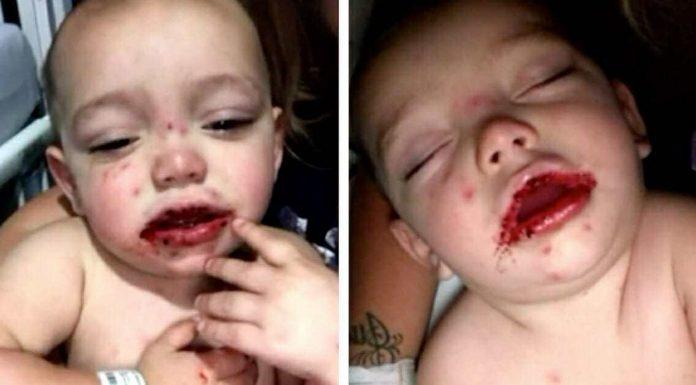 dijete otekline na ustima