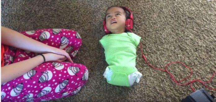 Obitelj posvojila djevojčicu rođenu bez udova