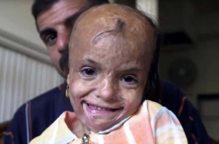 fotografija ozljeđene djevojčice