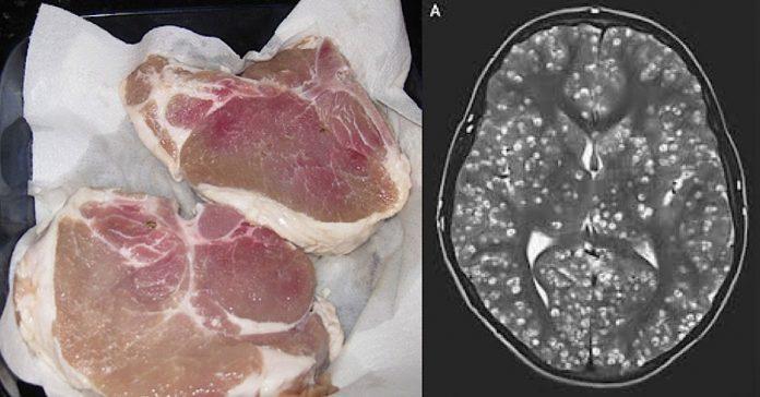 Tinejdžer je umro, a u njegovom mozgu su pronašli parazite iz mesa