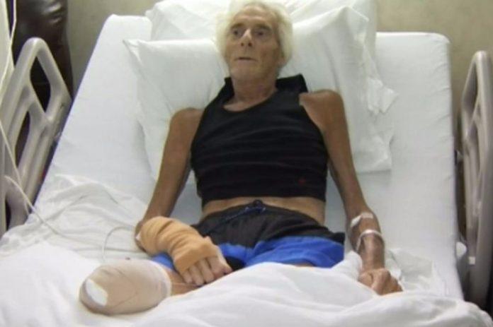 Zbog male posjekotine su mu morali amputirati nogu