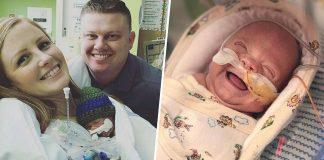 Beba rođena s pola kilograma