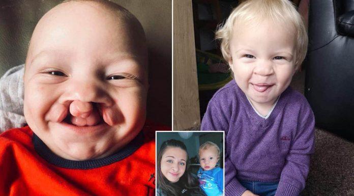 Dječak je rođen s rascjepom usne i nepca, a evo kako danas izgleda