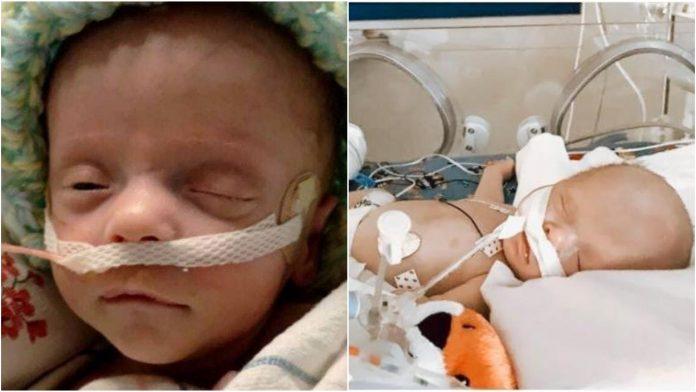 Beba se bori i nakon što su liječnici isključili aparat