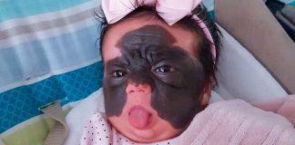 Djevojčica rođena s velikim madežom ide na operaciju