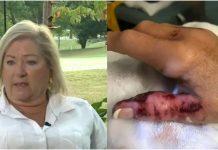 Žena se zarazila smrtonosnom bakterijom u kozmetičkom salonu