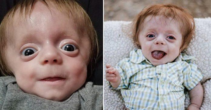 Dječak rođen s teškom bolešću kostiju pokazao je svima da su bili u krivu