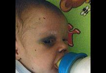 Beba se bori za život nakon sto ju je mama pretukla i otišla s dečkom
