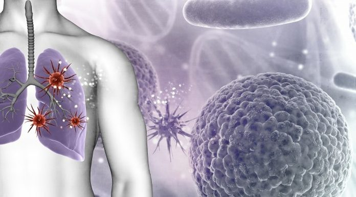 7 simptoma raka koje 90 posto ljudi ignorira