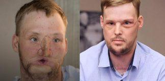 Mladić (21) prošao kroz nevjerojatnu operaciju transplantacije lica