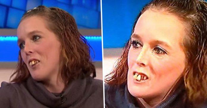 Ljudi su je vrijeđali zbog njenih zubi, a što bi rekli da je sada vide