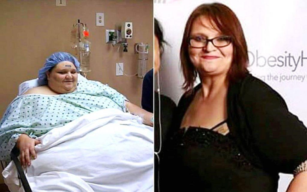 Ova žena je smršavila preko 220 kila 1