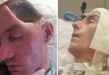 Otac ostao paraliziran s pola lubanje