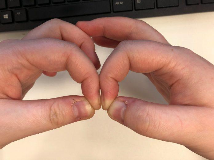 Ovaj test s noktima se koristi za rano otkrivanje raka pluća
