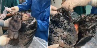 Kirurg objavio snimku pluća nakon 30 godina pušenja