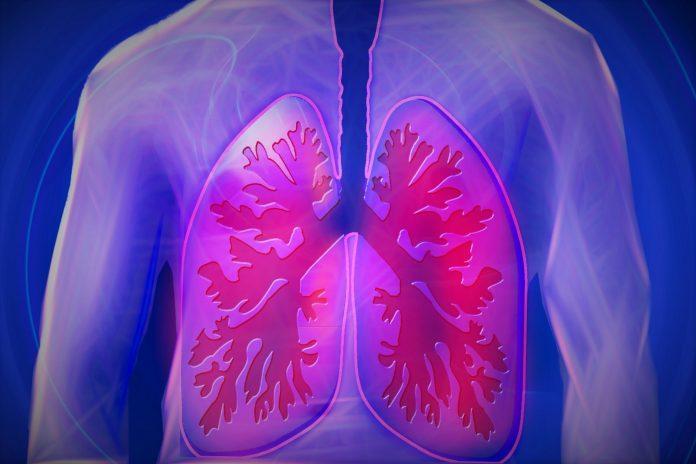 Rak pluća ne dobiju samo pušači