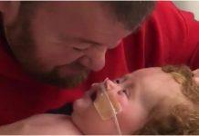 Tata nasmijava kćerkicu koja ima rijetku genetsku bolest