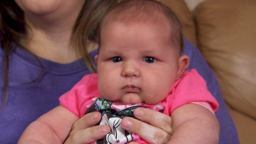 Liječnici su se počeli smijati kada su vidjeli njenu bebu 1