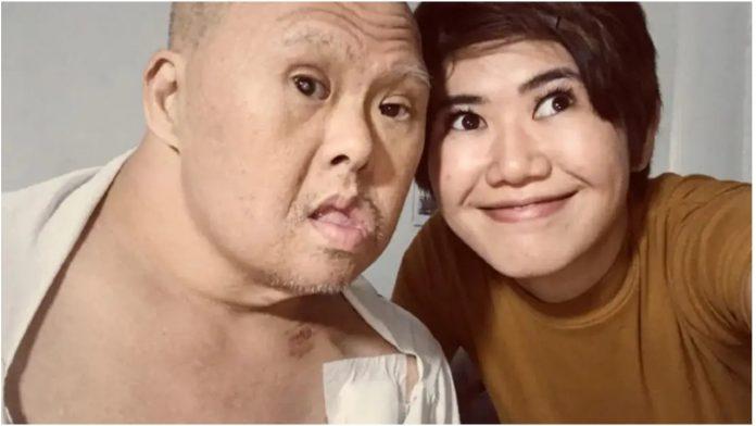 Rugali su joj se zbog oca s Downovim sindromom