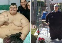 Najdeblji čovjek na svijetu je izgubio 130 kila i napokon može hodati