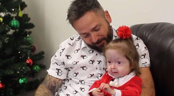 Djevojčica (2) boluje od sindroma kojeg nitko na svijetu nema