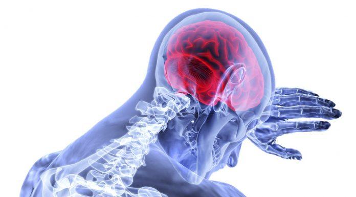 Namirnice štetne za zdravlje mozga