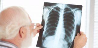 Ove tri žene su oboljele od raka pluća iako nikada nisu pušile