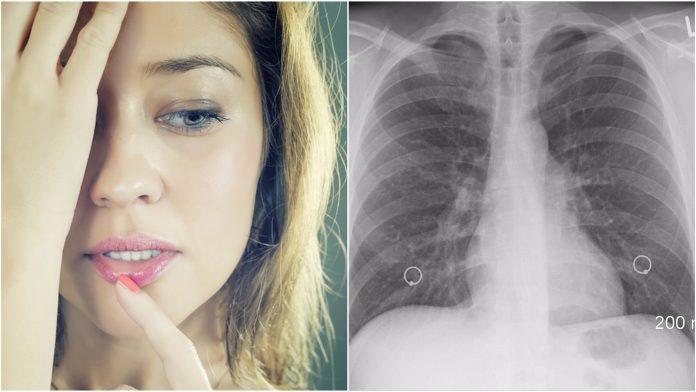 Jedna pojava na licu može biti simptom rak pluća