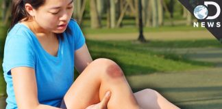 stvari koje uzrokuju modrice na tijelu
