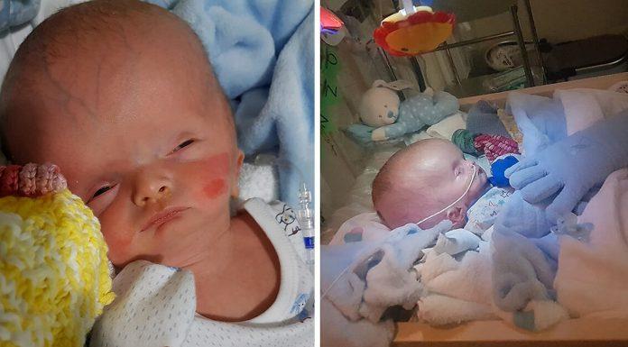 Beba rođena s natečenom glavom zadivljuje liječnike i roditelje