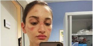 Medicinska sestra iz Milana je objavila selfie s važnom porukom