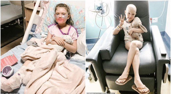 Djevojčica je pobijedila rak, a sada je na meti izrugivanja vršnjaka