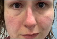 Medicinske sestre objavile potresne fotografije lica te poruku svima nama