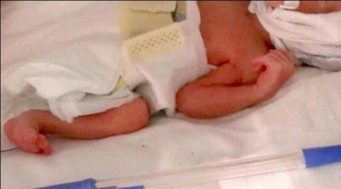 Rođena najmanja beba na svijetu