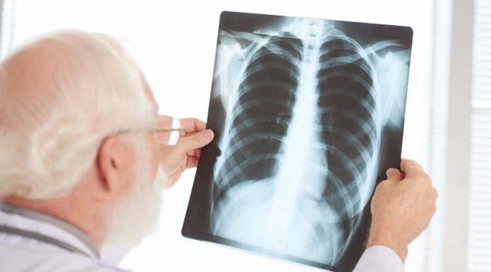 8 simptoma raka pluća koji se pojavljuju kod žena