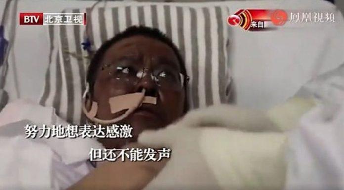 Dvojica Kineza nakon koronavirusa postala potpuno crna
