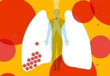 Što se događa s tijelom kad u njega uđe koronavirus?