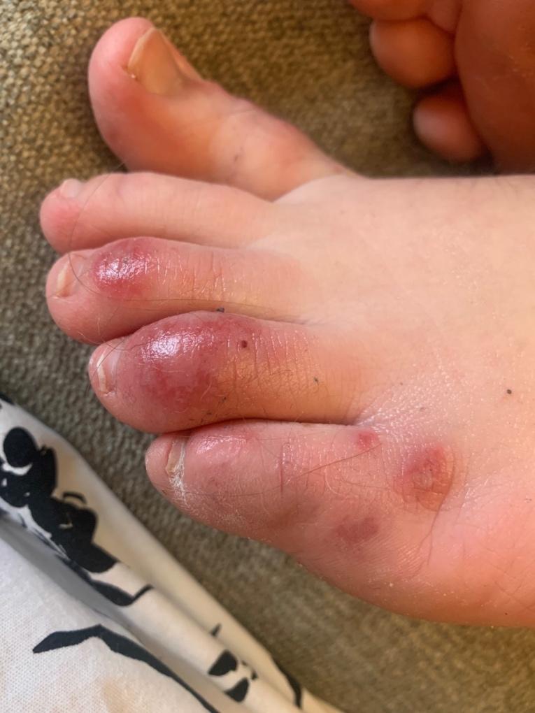 Koronavirus nožni prsti