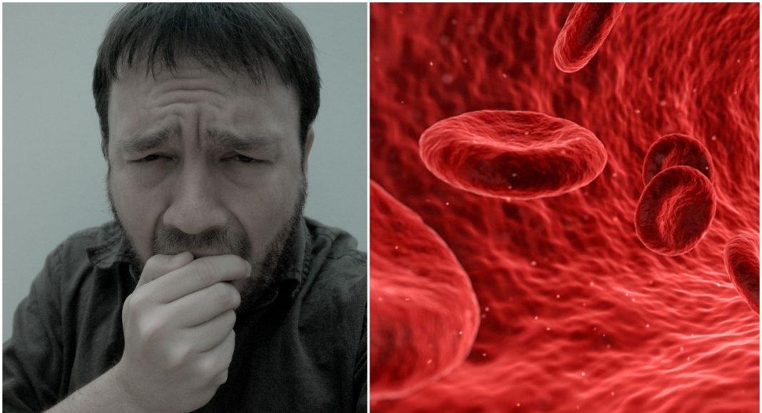 Krvni ugrušak